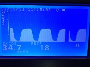 Capnógrafo. Sirve para monitorizar la frecuencia respiratoria y la cantidad de CO2 que exhala un animal durante cirugía