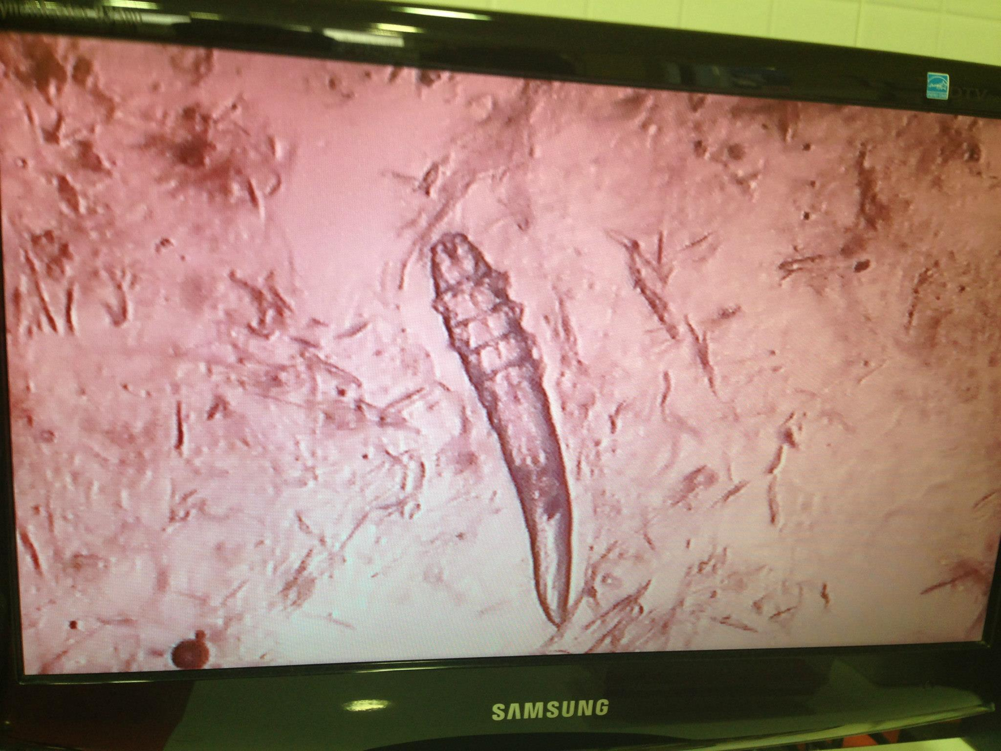 laboratorio demodex